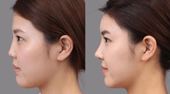 nose job rhinoplasty