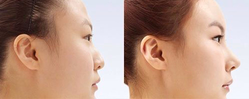 nose implant