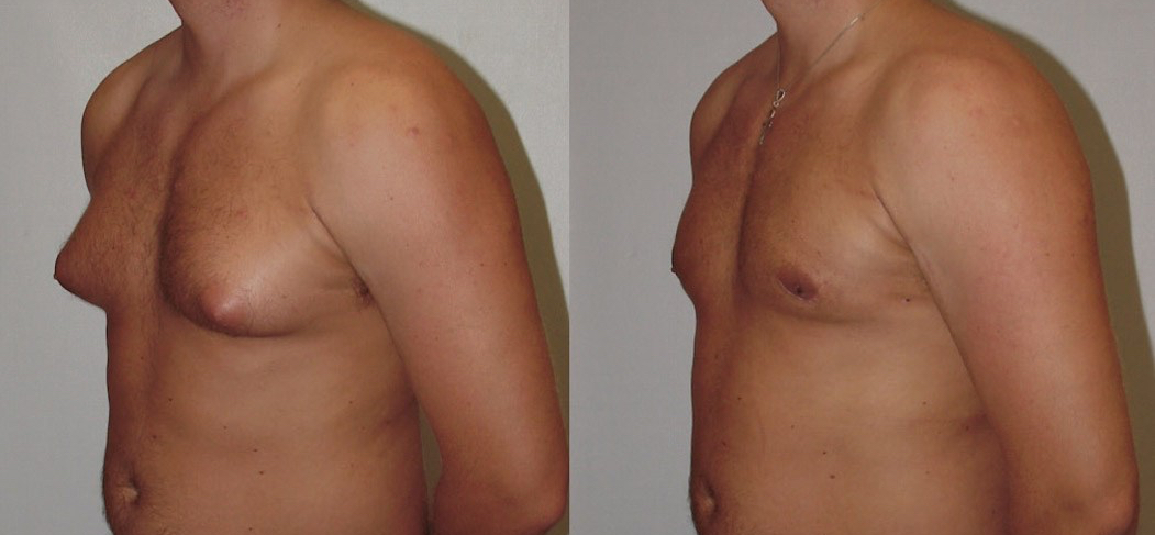 surgical gynecomastia reduction