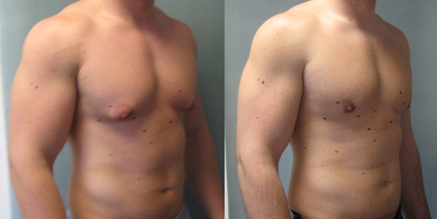 liposuction gynecomastia reduction