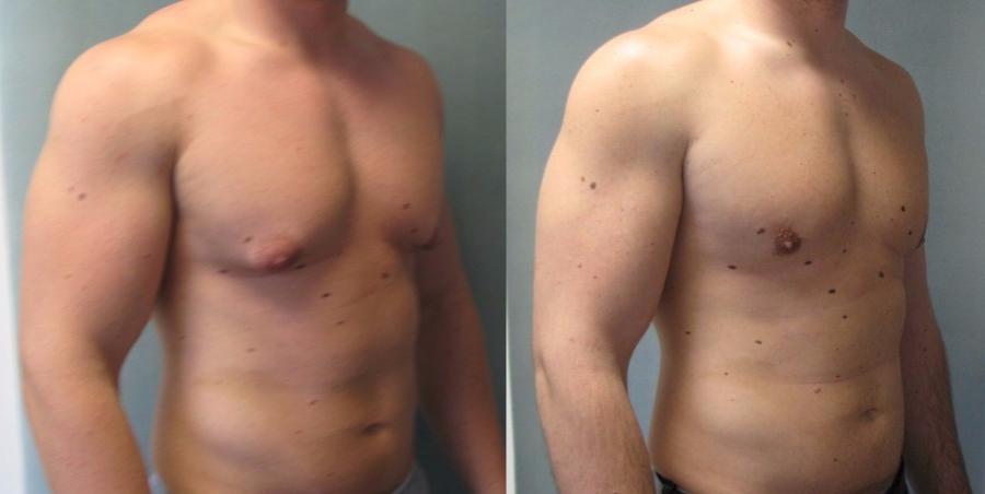 liposuction gynecomastia reduction