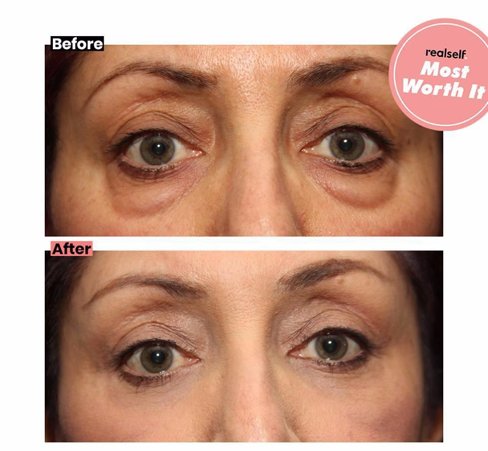 eyelids most worth it