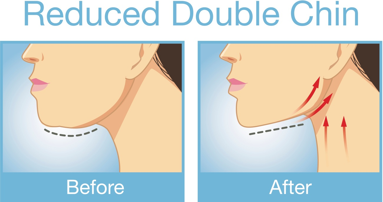 double chin reduction liposuction